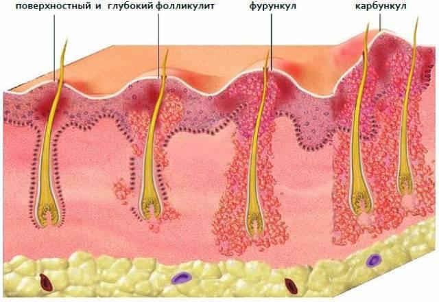 В основном причиной возникновения фурункулов на теле является не соблюдения правил гигиены и скопление бактерий под волосяным фолликулом